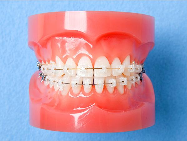歯の色に近い矯正装置