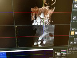 デジタルレントゲン・歯科用CT