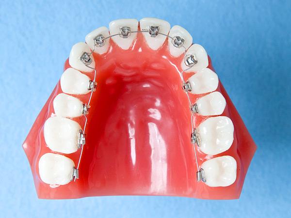 舌側矯正・裏側矯正装置リンガルブラケット