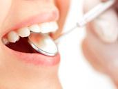 治療中の虫歯予防
